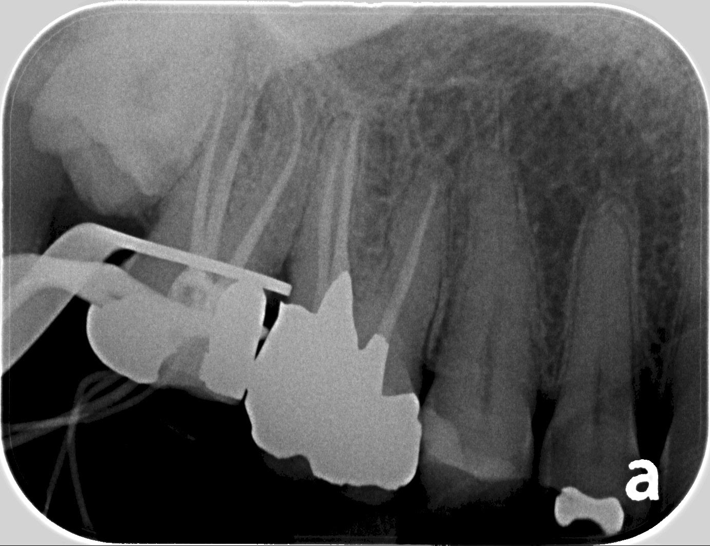 root canals plympton
