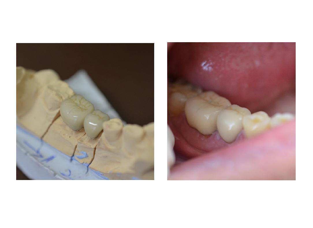 PBM dental crowns