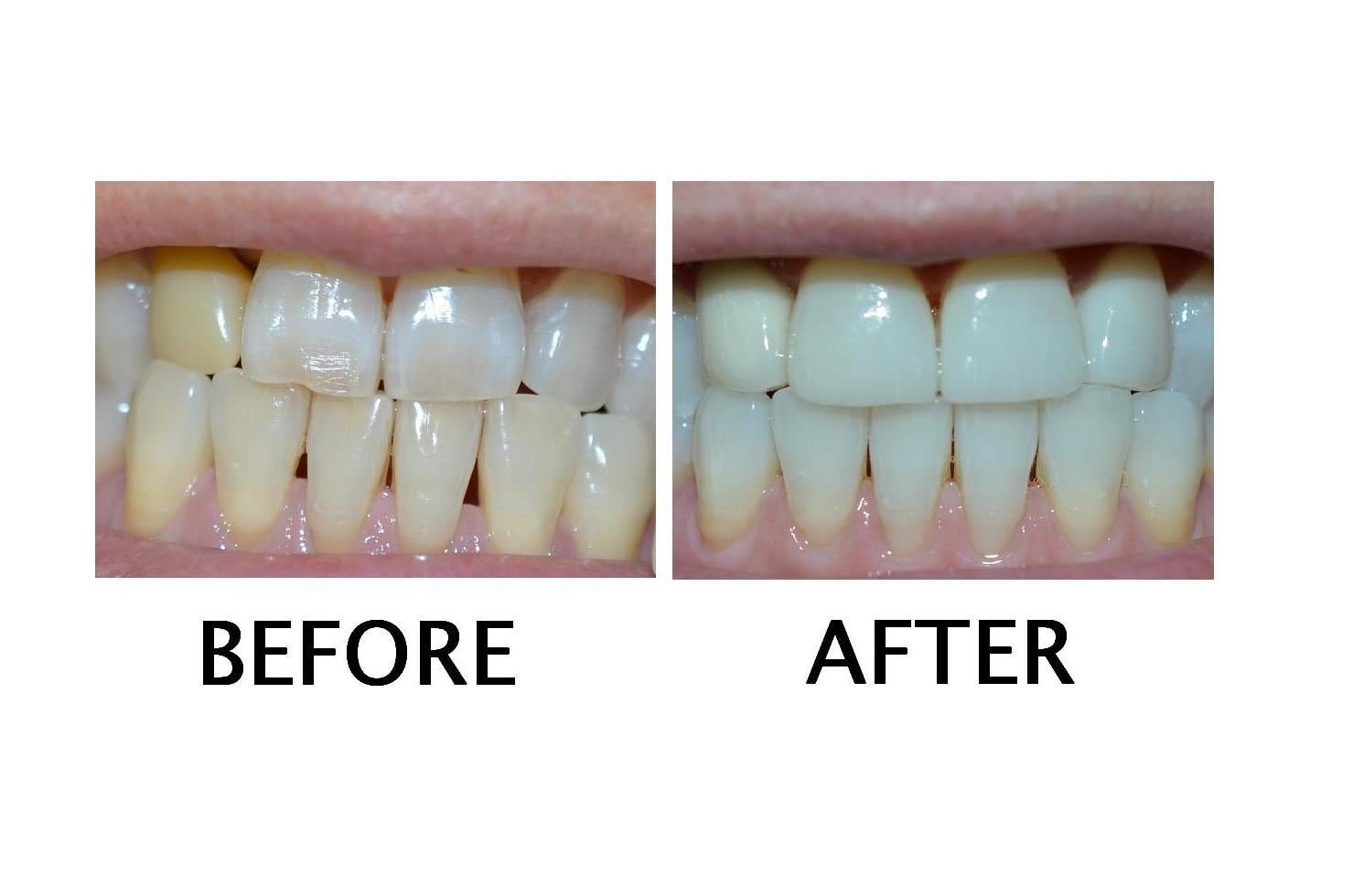 veneers  crown