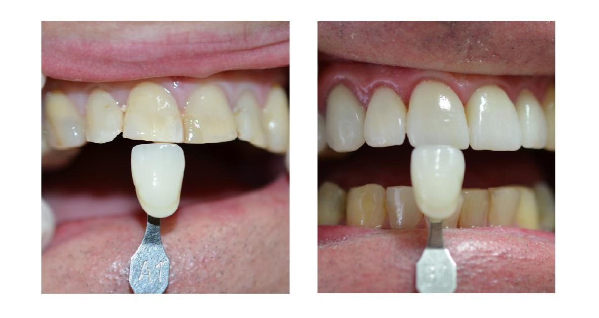 plympton dental veneers crowns
