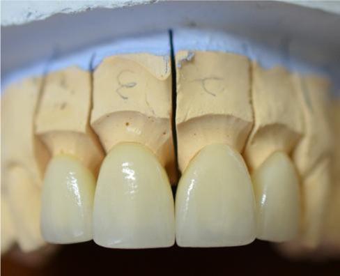 upper anterior crowns