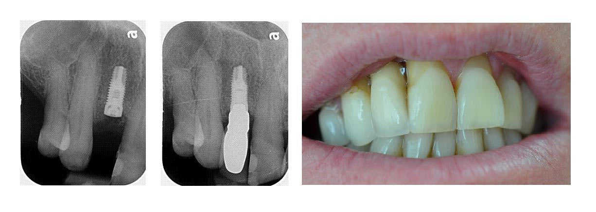 12 implant crown