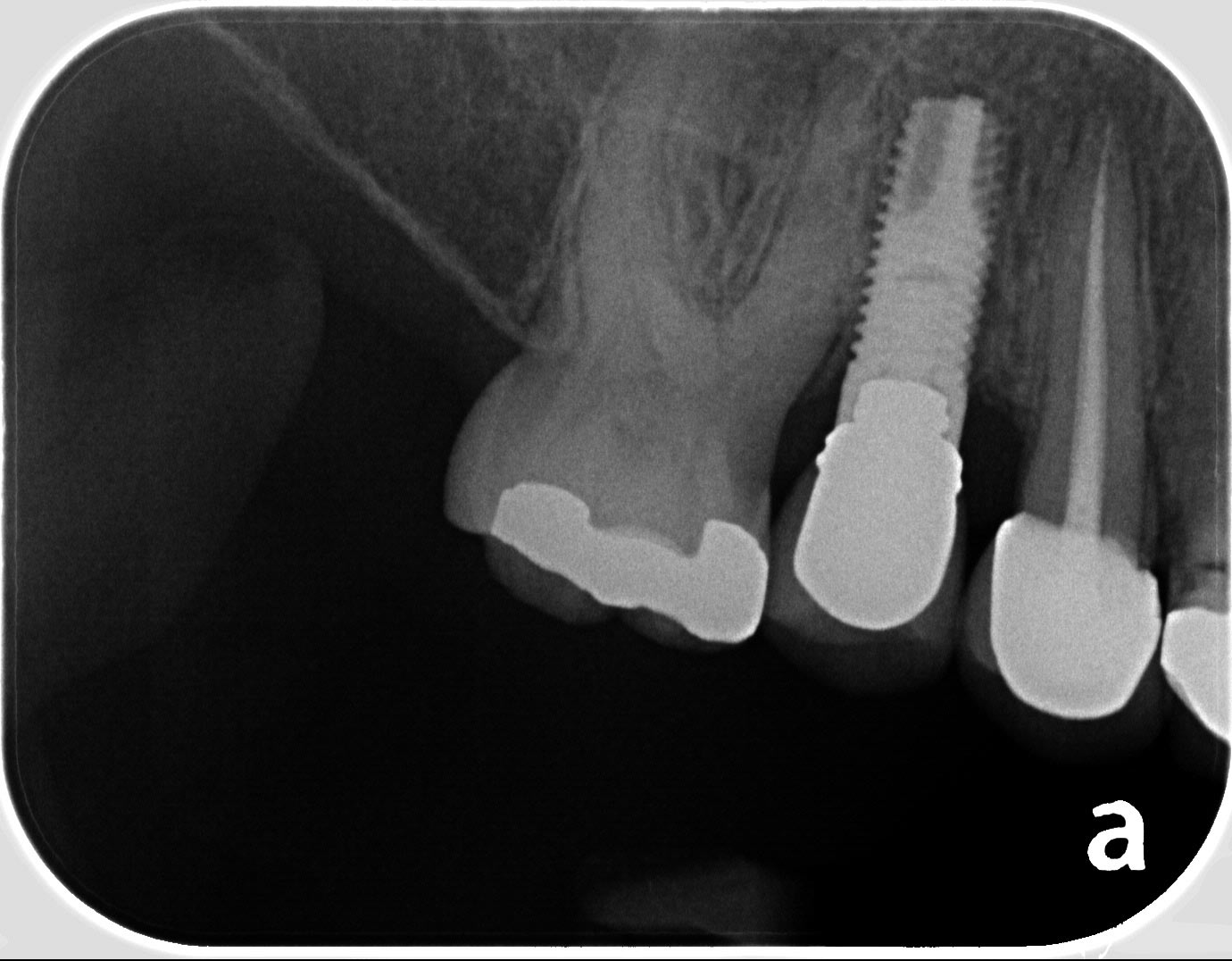 implant crown 2