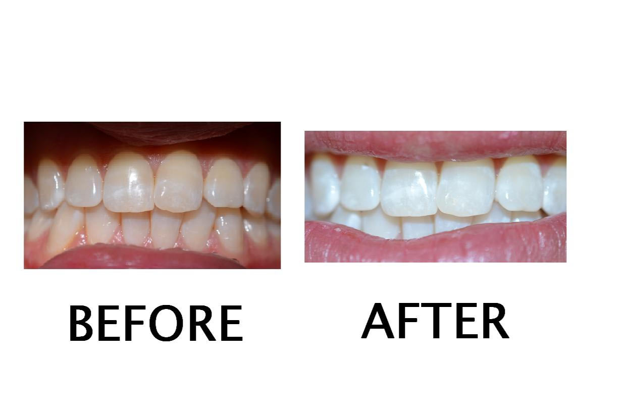 teeth whitening plympton
